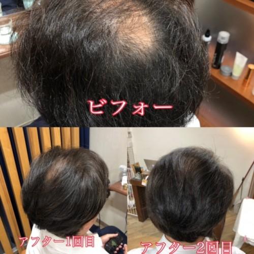 頭皮洗浄(ウォーターヘッドスパ)で育毛効果が目に見えてあらわれました!福岡市南区大橋のビーワン取り扱いサロン美容室ニュートリノ
